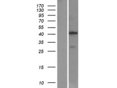 Transient overexpression lysate of aminomethyltransferase (AMT), nuclear gene encoding mitochondrial protein, transcript variant 1