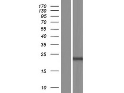 C9orf47 (NM_001142413) Human Over-expression Lysate