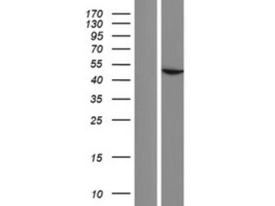 ACTBL2 (NM_001017992) Human Over-expression Lysate