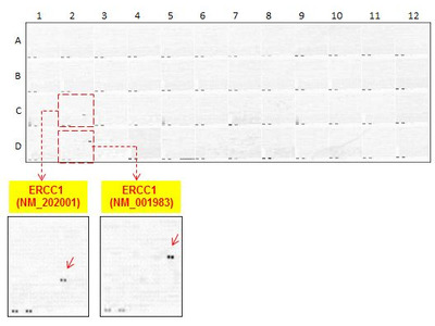 anti-ERCC1 mouse monoclonal antibody, clone 4F9