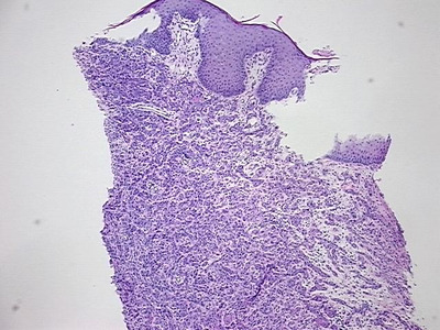 Tissue Sections (5x5um), FFPE; Perineum; Carcinoma of skin, squamous cell