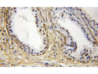 SS18L2 antibody