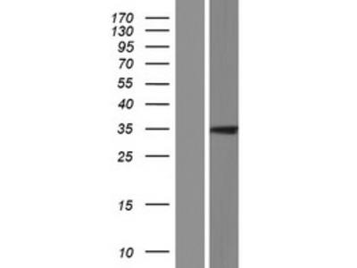 Transient overexpression lysate of HRAS-like suppressor family, member 5 (HRASLS5), transcript variant 3