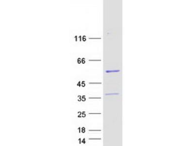 FAM61B (LSM14B) (NM_144703) Human Mass Spec Standard