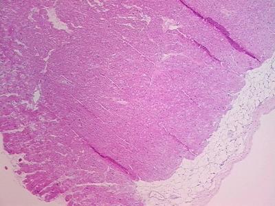 Tissue Sections (5x5um), FFPE; Heart; Cardiomyopathy