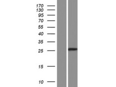 Transient overexpression lysate of chromosome 10 open reading frame 58 (C10orf58), transcript variant 1