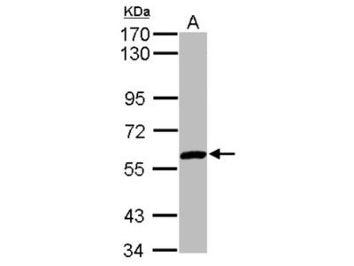 Rabbit Polyclonal ZNF345 Antibody