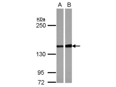 PPP2R3A Antibody