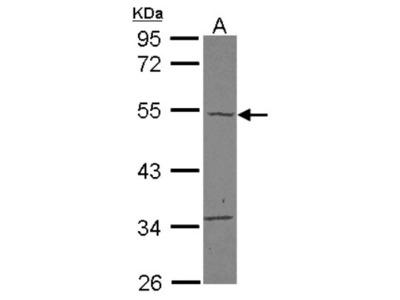 carabin Antibody