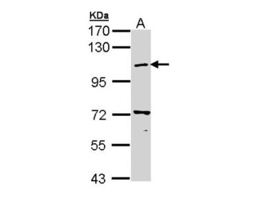 beta COP Antibody