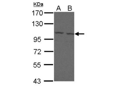 FCRL5 / FcRH5 / IRTA2 Antibody