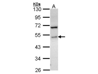 Sphingosine Kinase 1 / SPHK1 Antibody