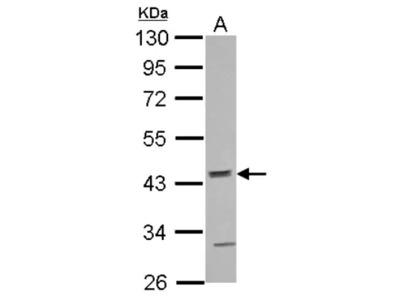 Rabbit Polyclonal ACTR10 Antibody