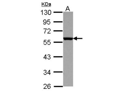 CD27 / TNFRSF7 Antibody