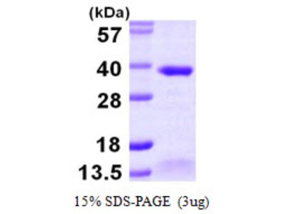 ABH2 Recombinant Protein