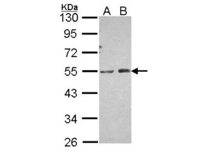 PIP5K2 alpha Antibody