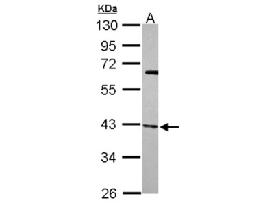 actin-related protein 2 / 3 complex subunit 1B Antibody