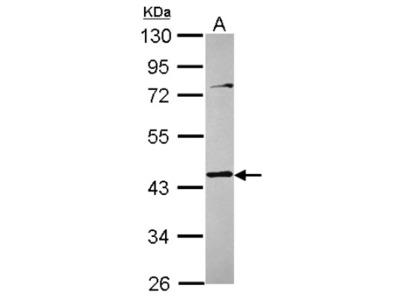Rabbit Polyclonal Tropomodulin 3 Antibody