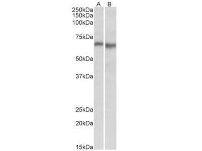Rabbit Polyclonal AMPK alpha 2 Antibody