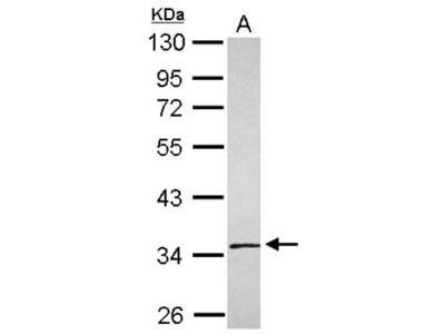 Rabbit Polyclonal SLC25A36 Antibody