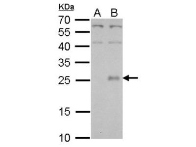 NR6 / CLC Antibody