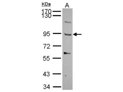 THSD1 Antibody
