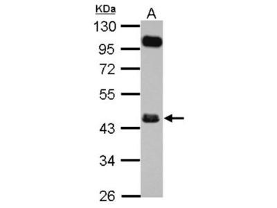 FCRLA / FCRLM1 Antibody