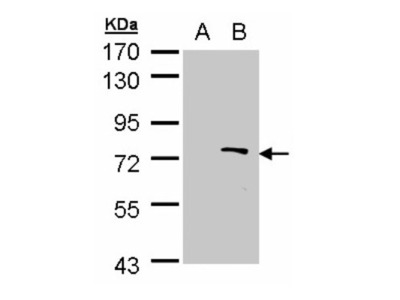 Rabbit Polyclonal ZMYND11 Antibody