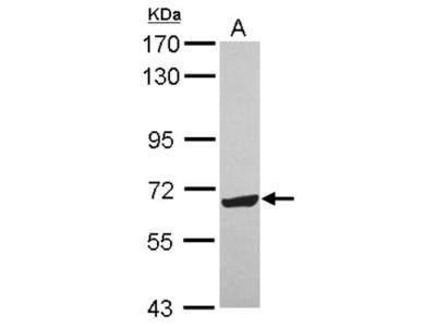 Rabbit Polyclonal ZNF587 Antibody