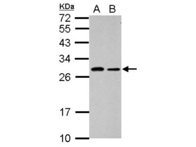 SPATA46 Antibody