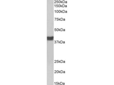 TNNT2 antibody