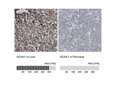 Anti-ACAA1 Antibody