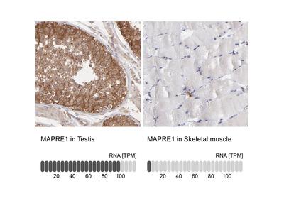 Anti-MAPRE1 Antibody