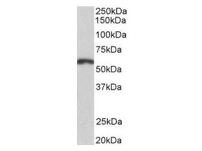 PAX3 antibody