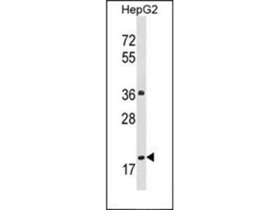 PPM1M antibody