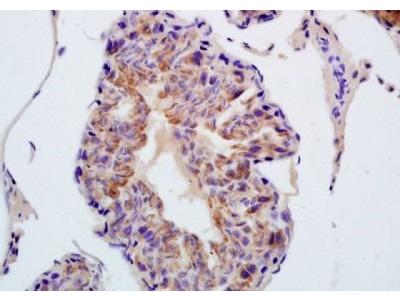 TXNRD1 antibody