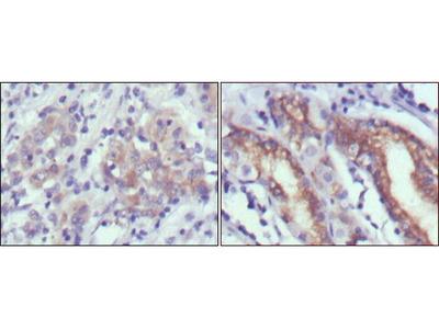 CER1 antibody