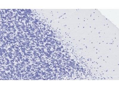 5-HT2A Receptor antibody