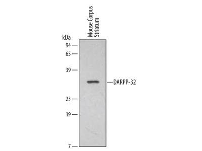 DARPP-32 Antibody