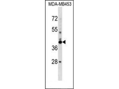 SRRD antibody
