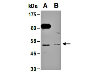 PRMT2 antibody