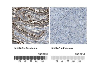 Anti-SLC2A5 Antibody