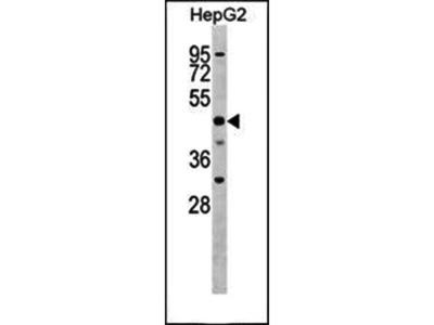 SLC2A9 antibody