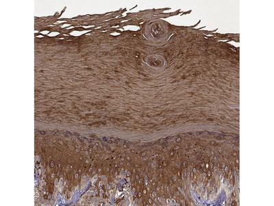 Anti-KRT9 Antibody