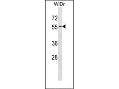 APG4D antibody