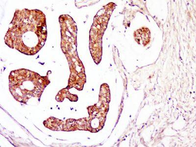 Thymosin beta 4 antibody