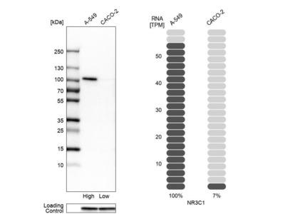 Anti-NR3C1 Antibody