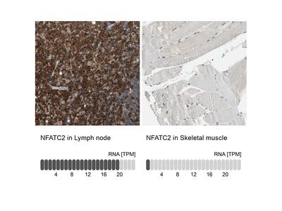 Anti-NFATC2 Antibody