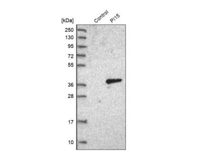 Anti-PI15 Antibody