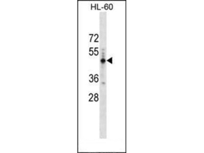 PRAMEF14 antibody